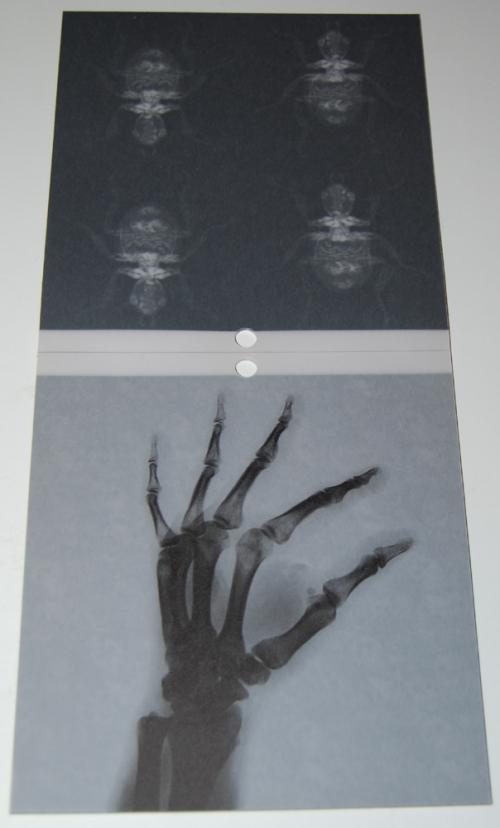 Spooky anatomical xray embellishments